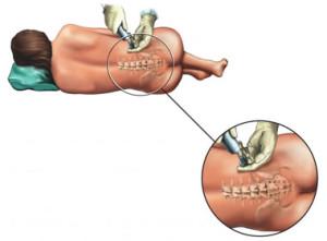 Pijn tijdens de bevalling 2