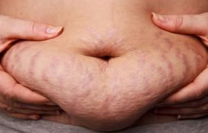 zwangerschapsstriemen 2